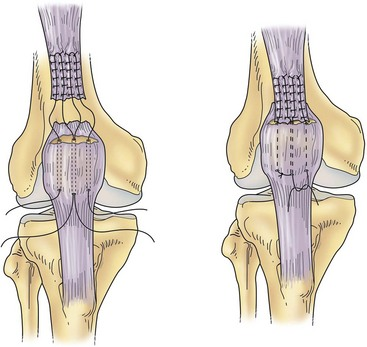 Quadriceps and patellar tendon disruption musculoskeletal key figure 66 3 acute repair of the quadriceps tendon into a bony trough ccuart Choice Image