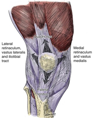 Fractures of the Patella   Musculoskeletal Key