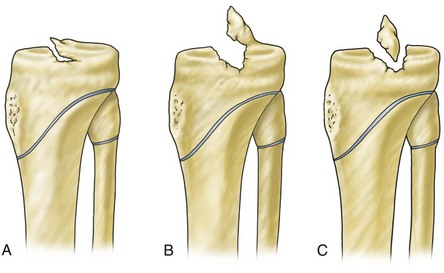 Tibial spine fractures musculoskeletal key - Tibial plafond fracture classification ...