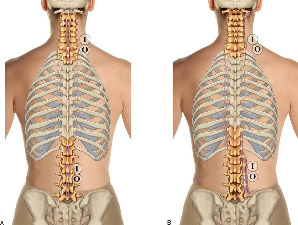 8. Muscles of the Spine and Rib Cage | Musculoskeletal Key
