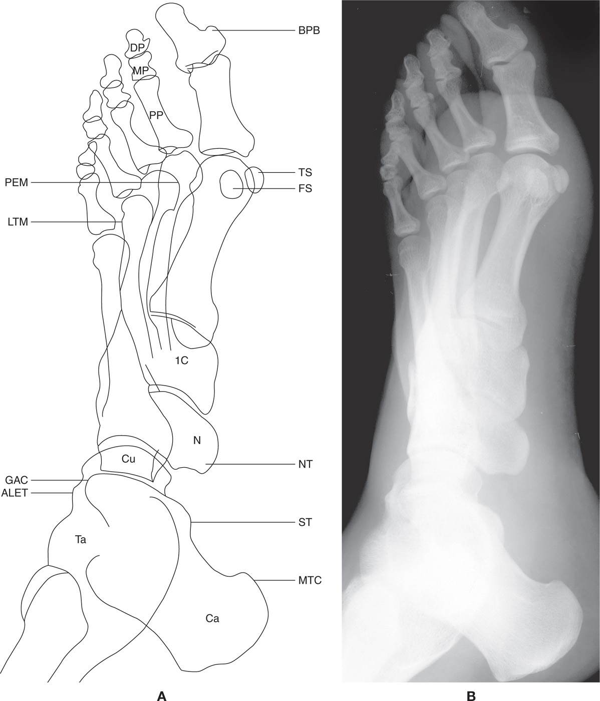 5: The Normal Foot and Ankle | Musculoskeletal Key
