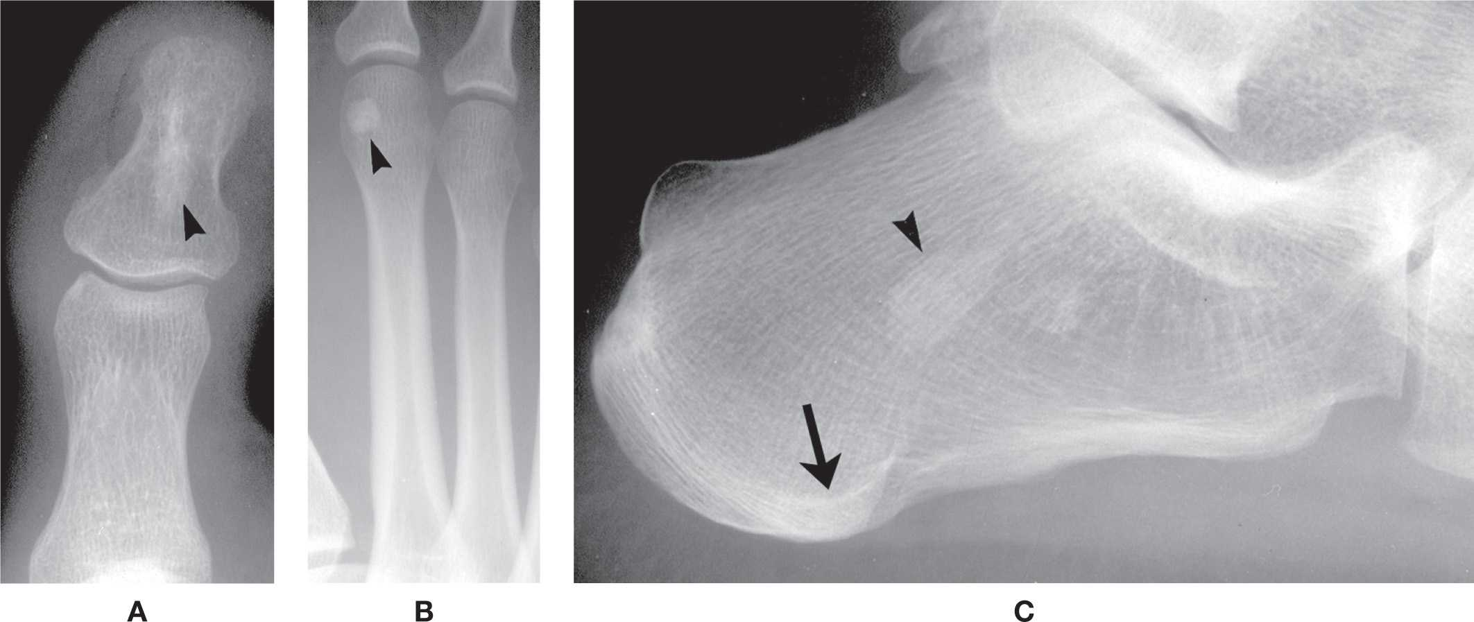 Ankylosing Spondylitis and Rheumatoid Arthritis