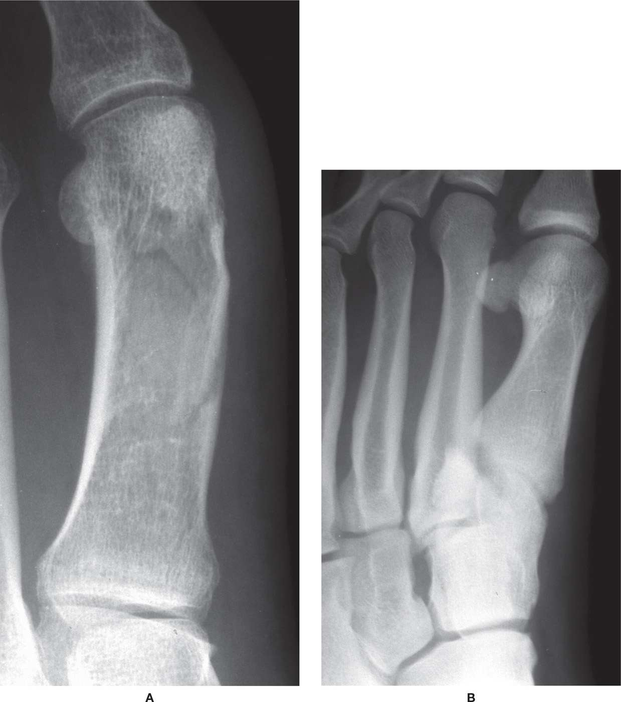 16: Classification of Fractures and Dislocations ...