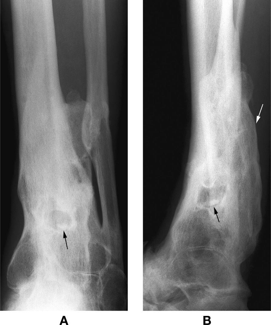 18: Bone Infection | Musculoskeletal Key Chronic Osteomyelitis Jaw