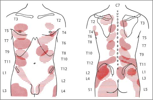 Nonradicular Pain Spondylogenic And Myofascial Pain Syndromes Inspiration Referred Pain Patterns