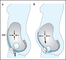 Posture and the Pelvic Floor