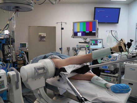 Hip Arthroscopy Lateral Approach To Patient Positioning