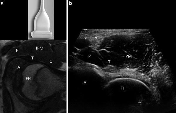 Ultrasound of the Hip   Musculoskeletal Key