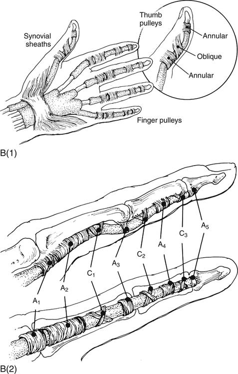Flexor Tendon Injury | Musculoskeletal Key