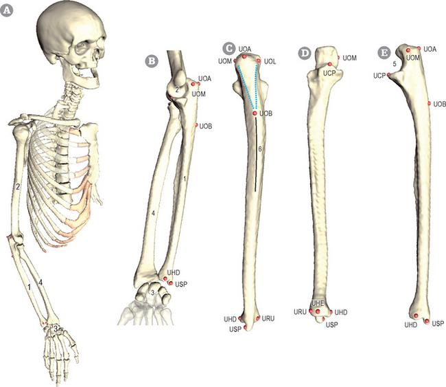 Ulna Musculoskeletal Key