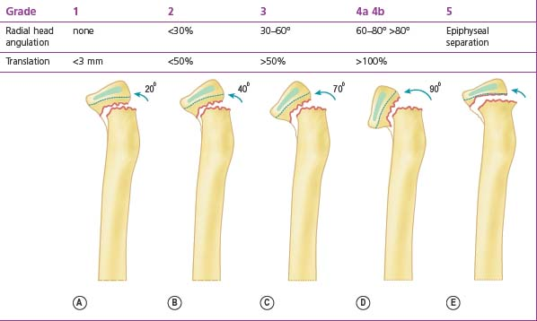 condyle fracture lateral osteosynthesis Collum fractures even today, a classification according to anatomical criteria is still commonly used (fig 1) fracture of the condylar base.