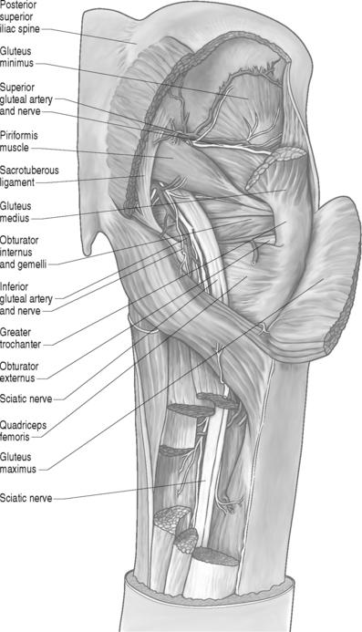 Piriformis Syndrome   Musculoskeletal Key