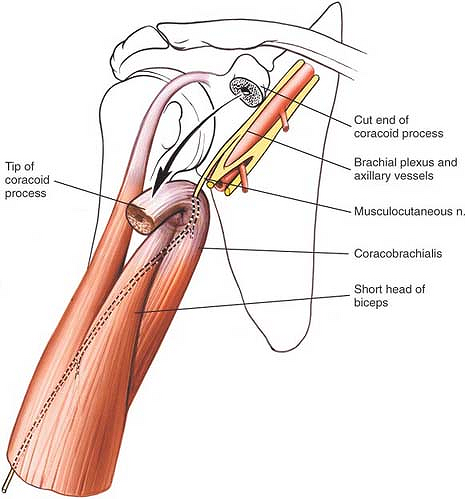 avascular necrosis of the hip steroids