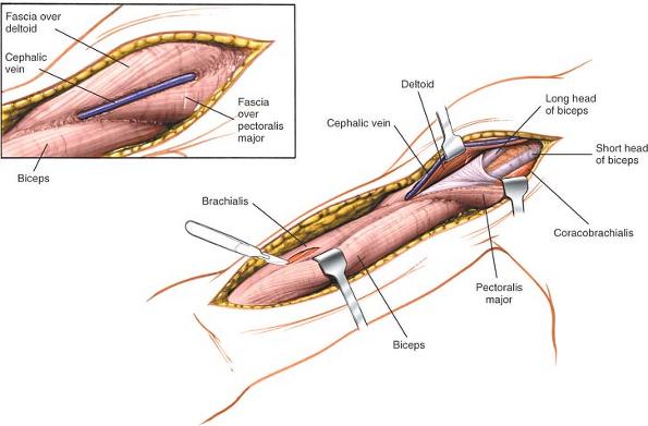 deltopectoral groove cephalic vein, Human Body