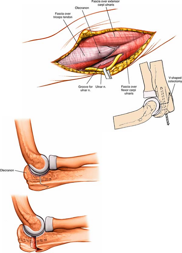 The Elbow Musculoskeletal Key