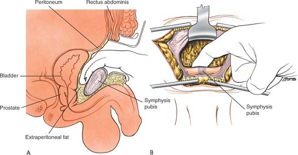 Pelvis and Acetabulum | Musculoskeletal Key