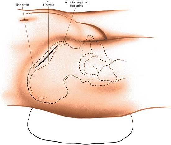 Iliac tubercle palpation