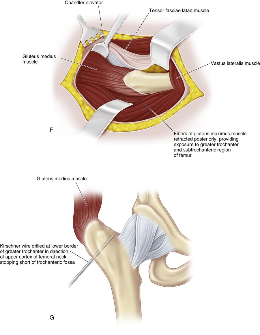 Magnificent Lower Femur Photos - Human Anatomy Images ...