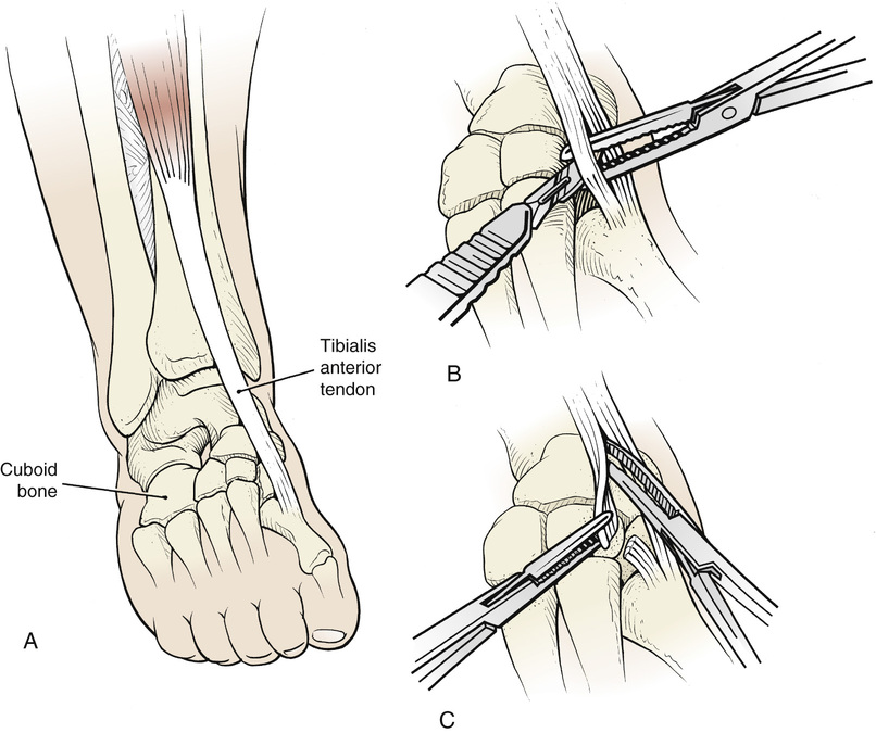20 Split Anterior Tibialis Tendon Transfer Musculoskeletal Key