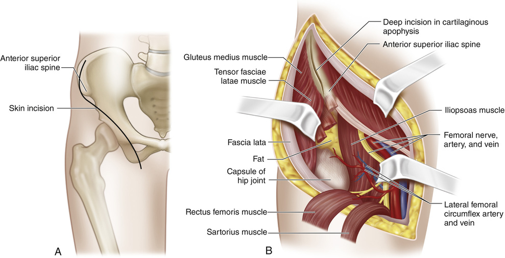 30 Iliopsoas Muscle Transfer for Paralysis of the Hip Abductors ...