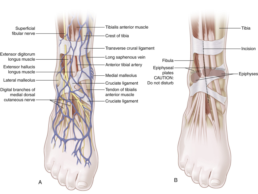 58 Arthrodesis Of The Ankle Joint Via The Anterior Approach Without