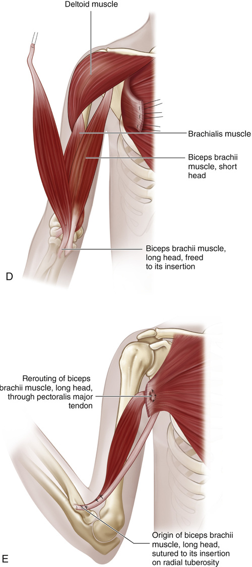 69 Pectoralis Major Transfer For Paralysis Of The Elbow Flexors