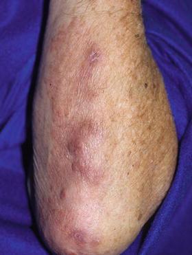 nodulos subcutaneos artritis reumatoide