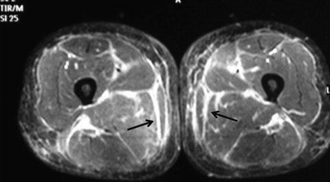 Eosinophilic Fasciitis Musculoskeletal Key