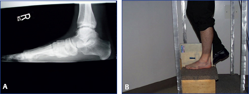 Radiology In Foot And Ankle Musculoskeletal Key