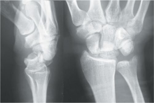Trans Scaphoid Perilunate Dislocation