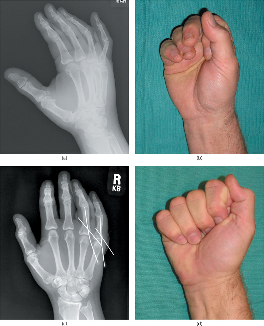 Phalangeal fractures and dislocations | Musculoskeletal Key