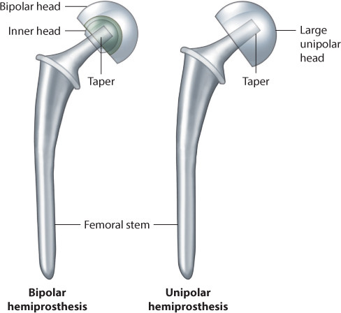 Intracapsular Proximal Femoral Fractures Musculoskeletal Key