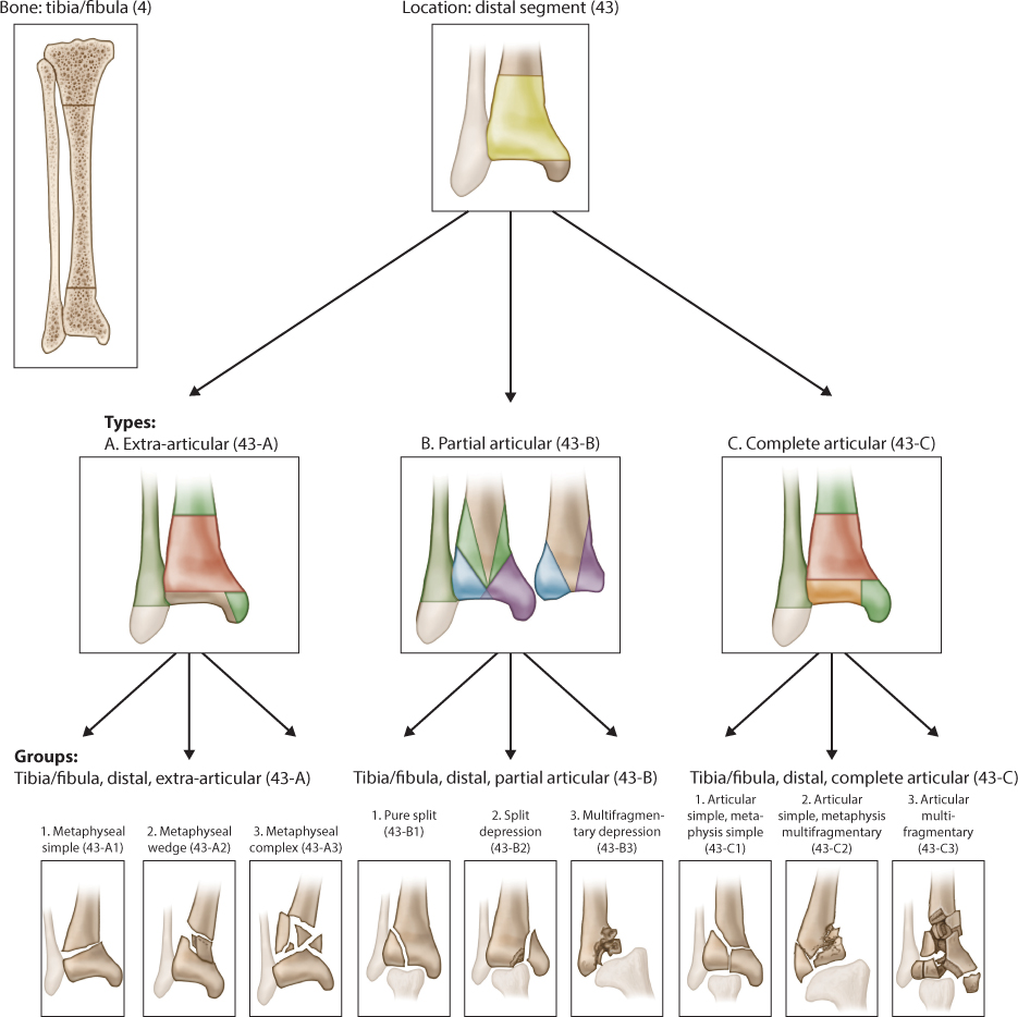 Distal tibial fractures musculoskeletal key - Tibial plafond fracture classification ...