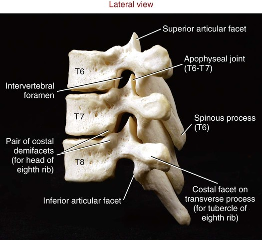 Planos Anatmicos Cavidades Tejidos in addition Ushas Anatomy Notes furthermore Structure And Function Of The Vertebral Column together with 6819845 in addition Introduction To Human Anatomy 41950739. on anterior and posterior frontal plane anatomy