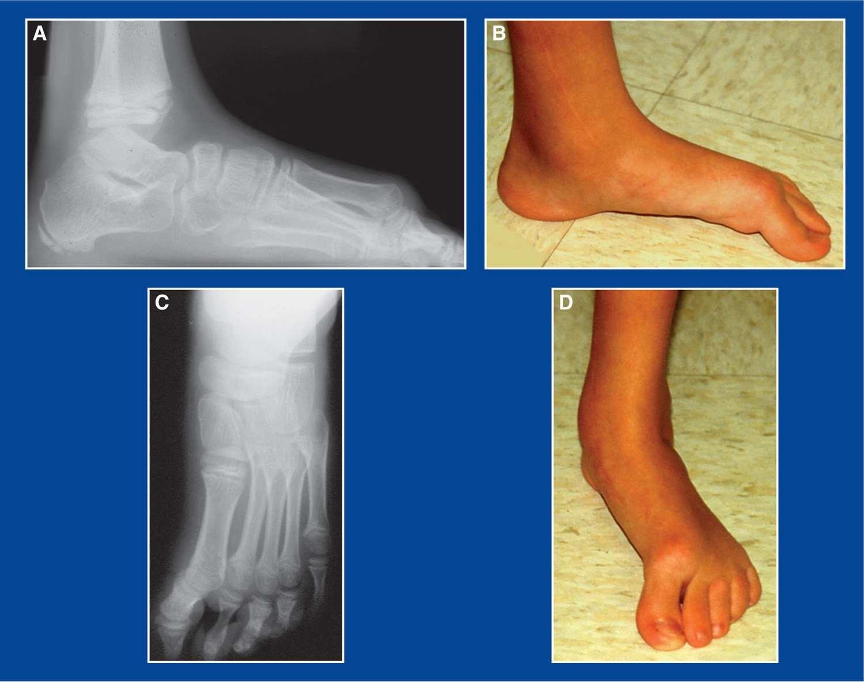 Foot and Ankle Deformities | Musculoskeletal Key