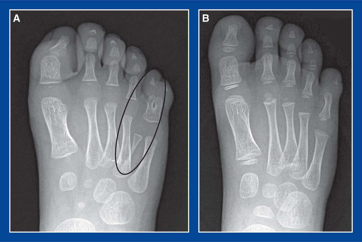 Foot Malformations Musculoskeletal Key Discover free flashcards, games and test preparation activities designed to help you learn about synchondrosis movement and other subjects. foot malformations musculoskeletal key
