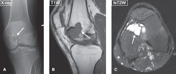Bone And Soft Tissue Tumors Musculoskeletal Key