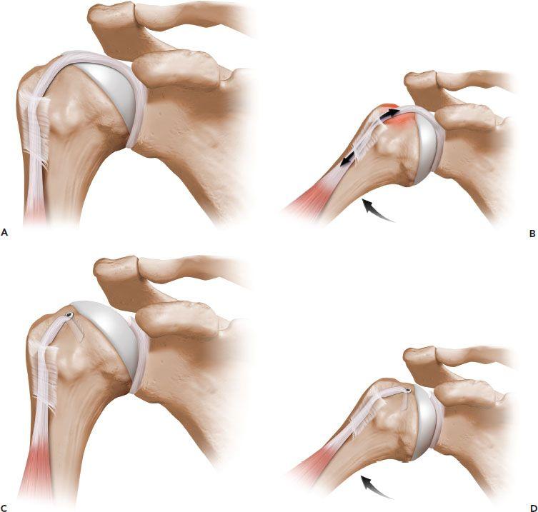 The Biceps Tendon Musculoskeletal Key