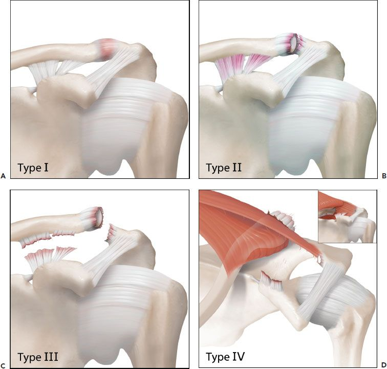 The Acromioclavicular Joint Musculoskeletal Key