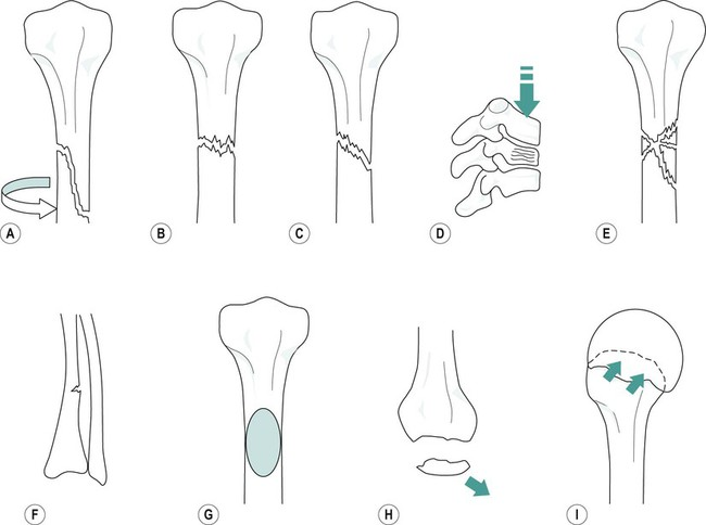 An Introduction To Fractures Musculoskeletal Key