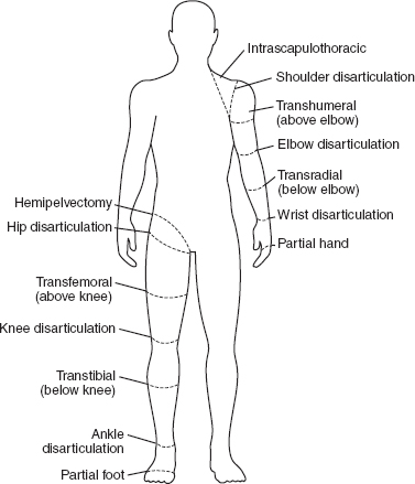 Pediatric Limb Deficiencies | Musculoskeletal Key