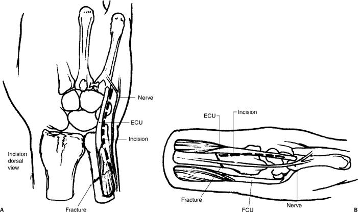 Fractures Of The Ulnar Neck Musculoskeletal Key