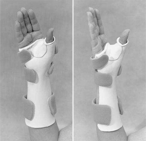 Sorry, Thumb immobilization splint join