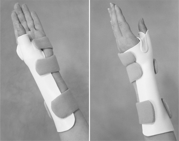 Thumb Immobilization Splints Musculoskeletal Key