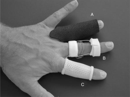 Splinting For The Fingers Musculoskeletal Key