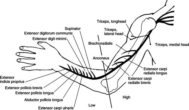 Splinting for Nerve Injuries   Musculoskeletal Key