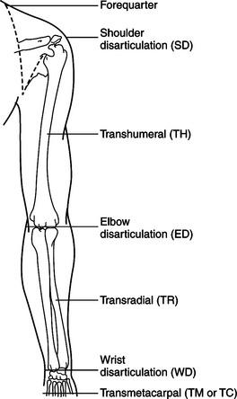 Upper Extremity Prosthetics | Musculoskeletal Key