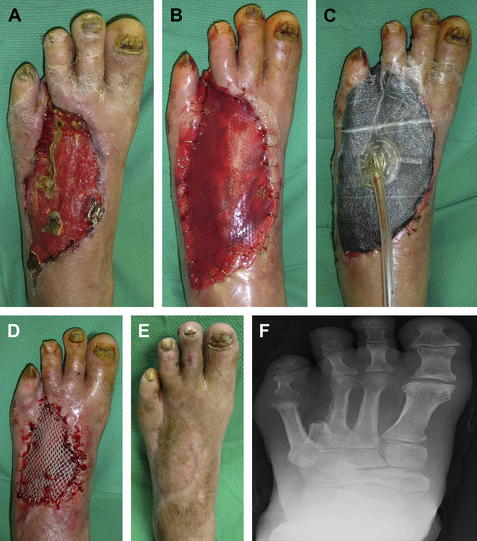 Soft Tissue Closure Of Severe Diabetic Foot Infections A