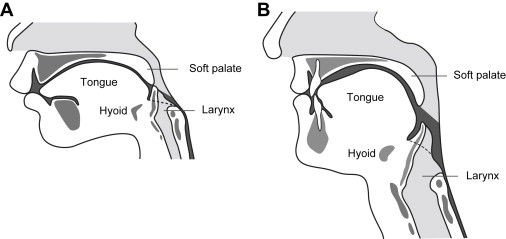 Anatomy and physiology of feeding and swallowing normal for Oral motor exercises for adults
