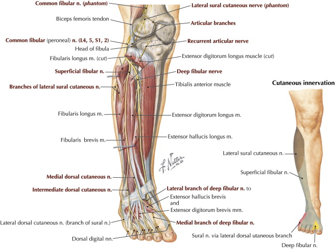 Fibular Peroneal Neuropathy Musculoskeletal Key